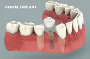 dental-bridge-or-implant