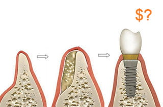 Dental bone graft cost
