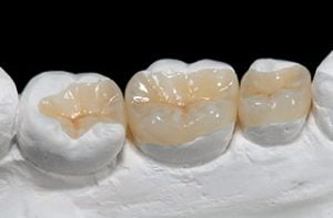 Dental inlay -BestDentalimplants