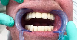 Dental implant recommendations