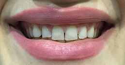 cosmetic-dentistry-before-and-afer