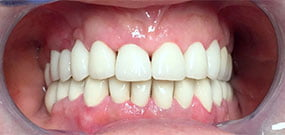 Teeth discoloration after treatment