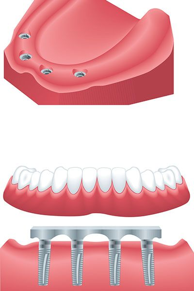 all-on-four-dental implants