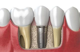 best-place-to-get-dental-implants