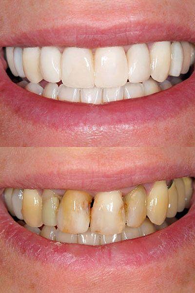 celebrity-teeth