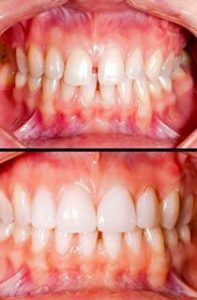 cosmetic-dentistry-before-and-after