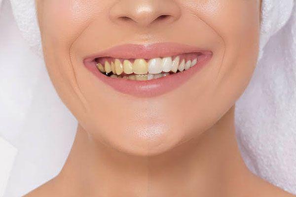 dental-crown-cost