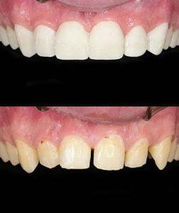 getting-teeth-fixed