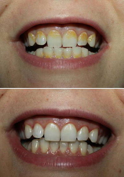 dental plaque before-after